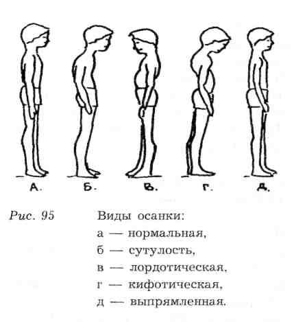 Грудной кифоз фитнес